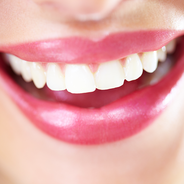 Close up of smile with veneers
